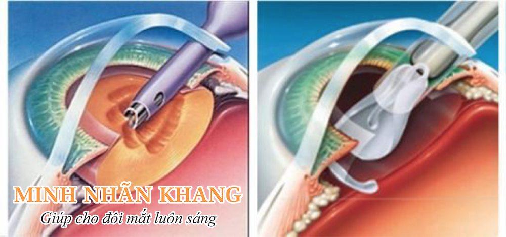 Phẫu thuật thay thủy tinh thể nhân tạo chữa đục thủy tinh thể